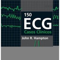 150 ECG - Casos Clínicos